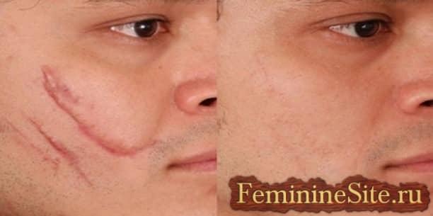 Шрамы на лице