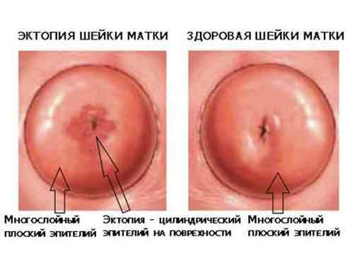 Виды эрозий - от эрозии глаза, зубов до ... эрозии матки