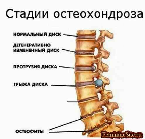 Остеохондроз поясничного отдела отдает в правую ногу